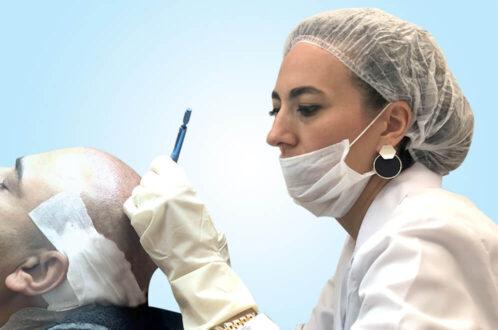 Hårtransplantation i Turkiet